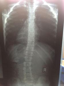 Сколиоз у детей - рентген позвоночника ребенка 8лет со сколиозом 2степени до лечения