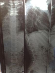 Сколиоз у детей - рентген позвоночника ребенка со сколиозом 1степени после лечения
