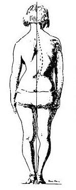 C-образный сколиоз