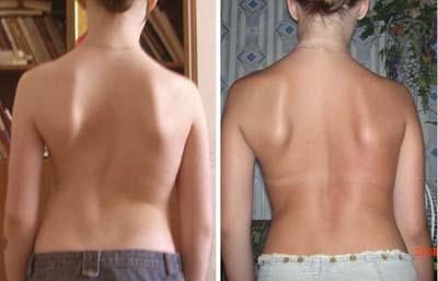 Фото пациента до лечения (C-образный сколиоз 3 степени, 40 градусов) и после лечения (2 степень, 20 градусов)