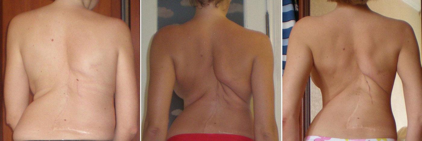сколиоз 4 степени до и после операции фото